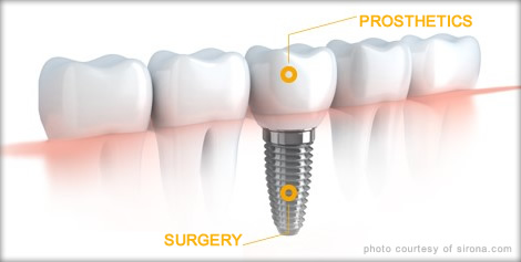 what-are-dental-implants_470x237