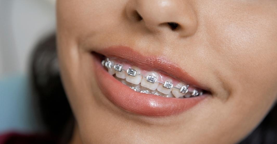 Dental Implants Manila, Philippines - Orthodontic ...