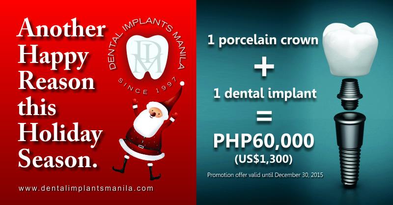 Dental-Implants-Manila_Promotion-Offer_1-Porcelain-Crown_plus_1-Dental-Implant_Equals_60k