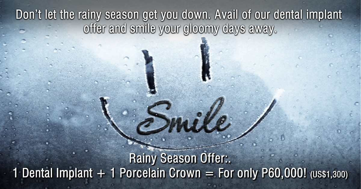 Dental-Implants-Manila_Rainy-Season-Offer_FB-Ad