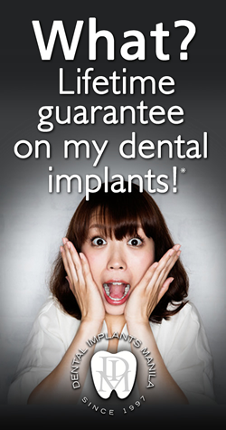 Lifetime Guarantee for Dental Implants